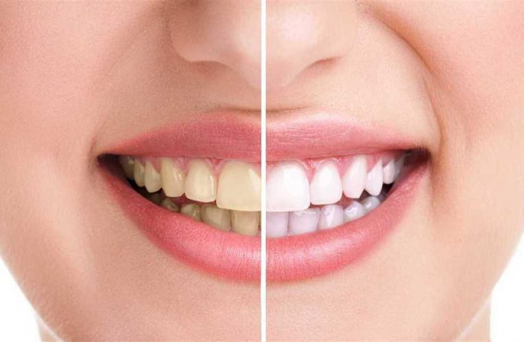 Which Foods Actually Stain Your Teeth?